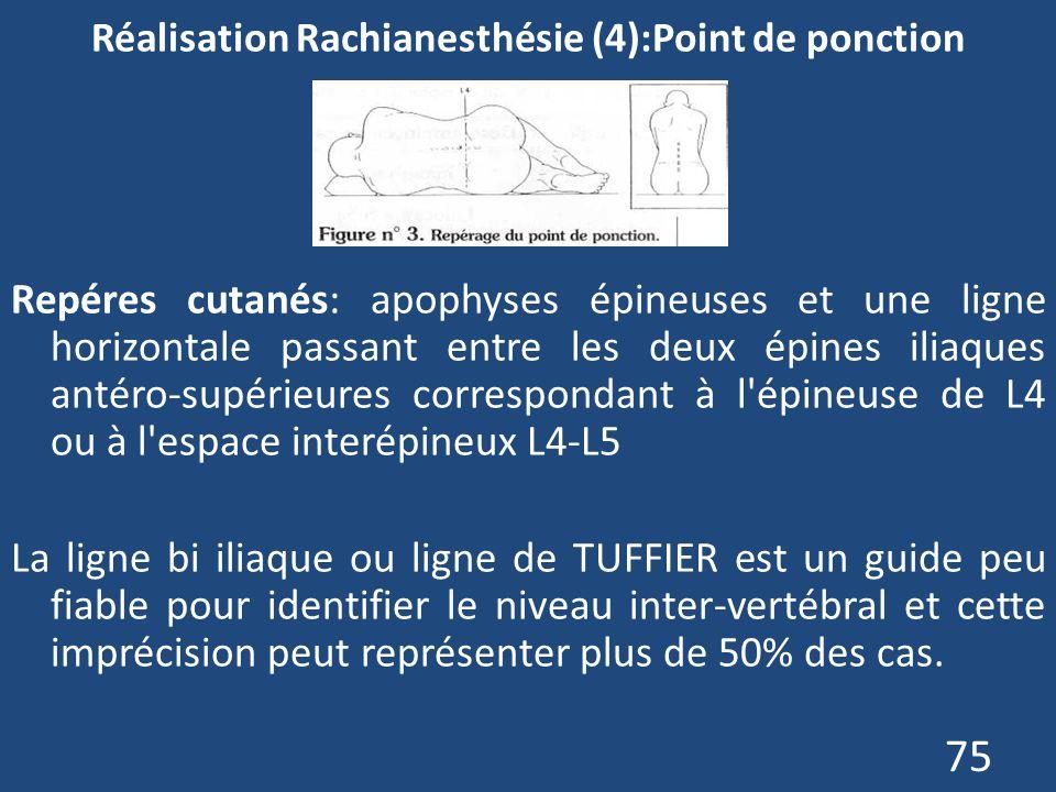 75 Réalisation Rachianesthésie (4):Point de ponction Repéres cutanés: apophyses épineuses et une ligne horizontale passant entre les deux épines iliaq