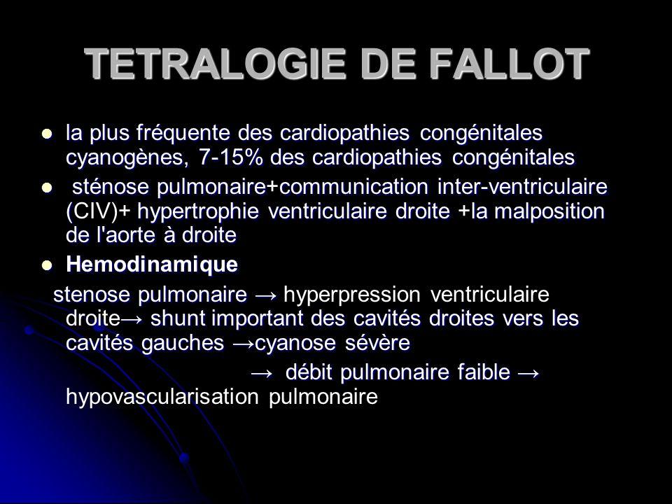 TETRALOGIE DE FALLOT la plus fréquente des cardiopathies congénitales cyanogènes, 7-15% des cardiopathies congénitales la plus fréquente des cardiopat