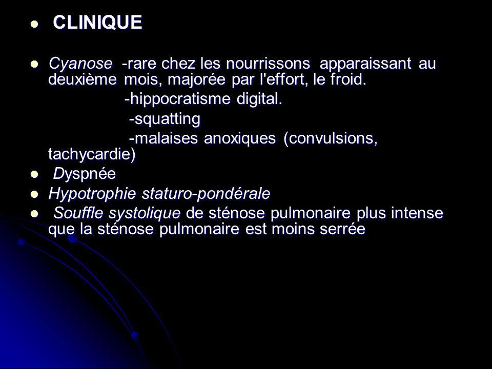 CLINIQUE CLINIQUE Cyanose -rare chez les nourrissons apparaissant au deuxième mois, majorée par l'effort, le froid. Cyanose -rare chez les nourrissons