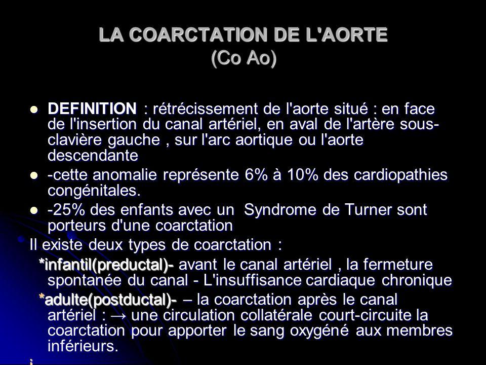 LA COARCTATION DE L'AORTE (Co Ao) DEFINITION : rétrécissement de l'aorte situé : en face de l'insertion du canal artériel, en aval de l'artère sous- c