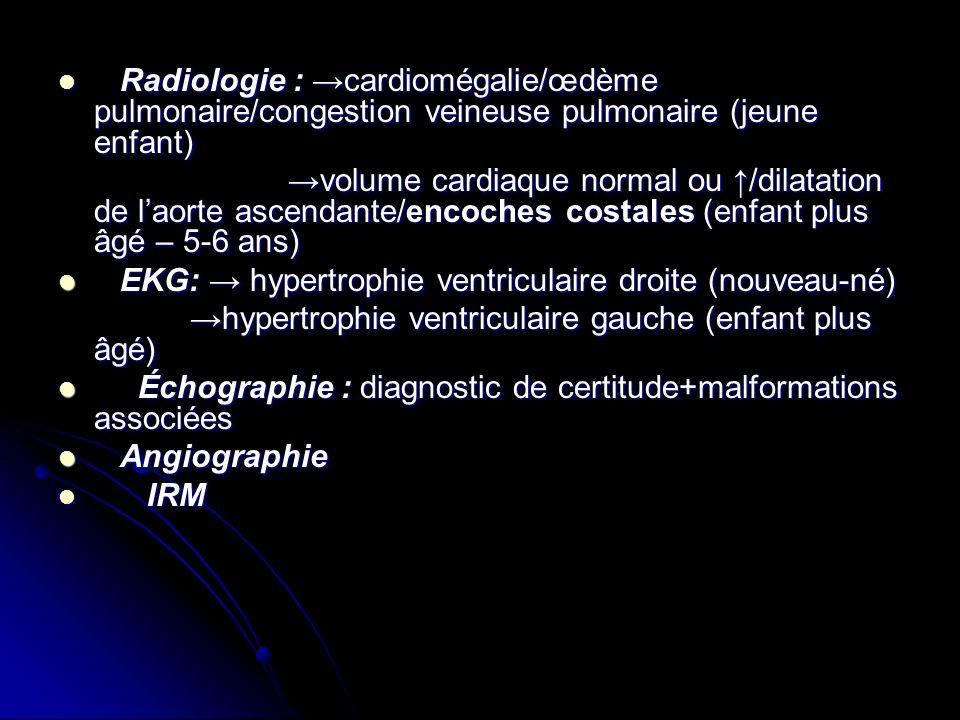 Radiologie : cardiomégalie/œdème pulmonaire/congestion veineuse pulmonaire (jeune enfant) Radiologie : cardiomégalie/œdème pulmonaire/congestion veine