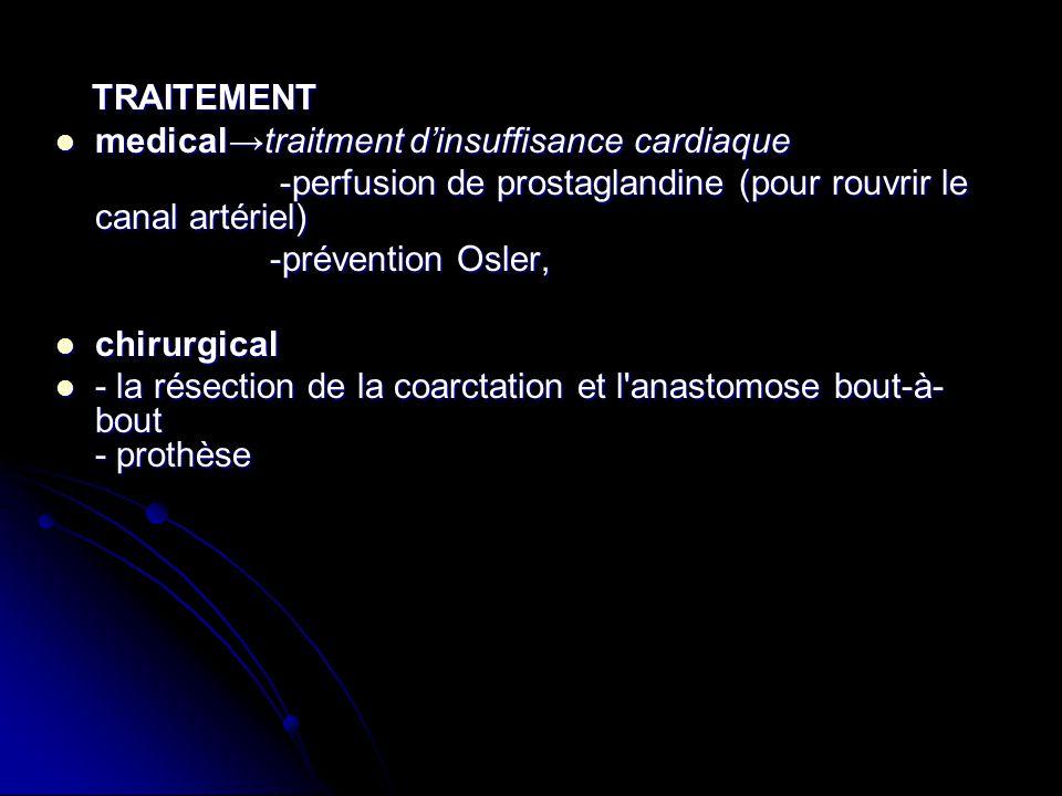 TRAITEMENT TRAITEMENT medicaltraitment dinsuffisance cardiaque medicaltraitment dinsuffisance cardiaque -perfusion de prostaglandine (pour rouvrir le