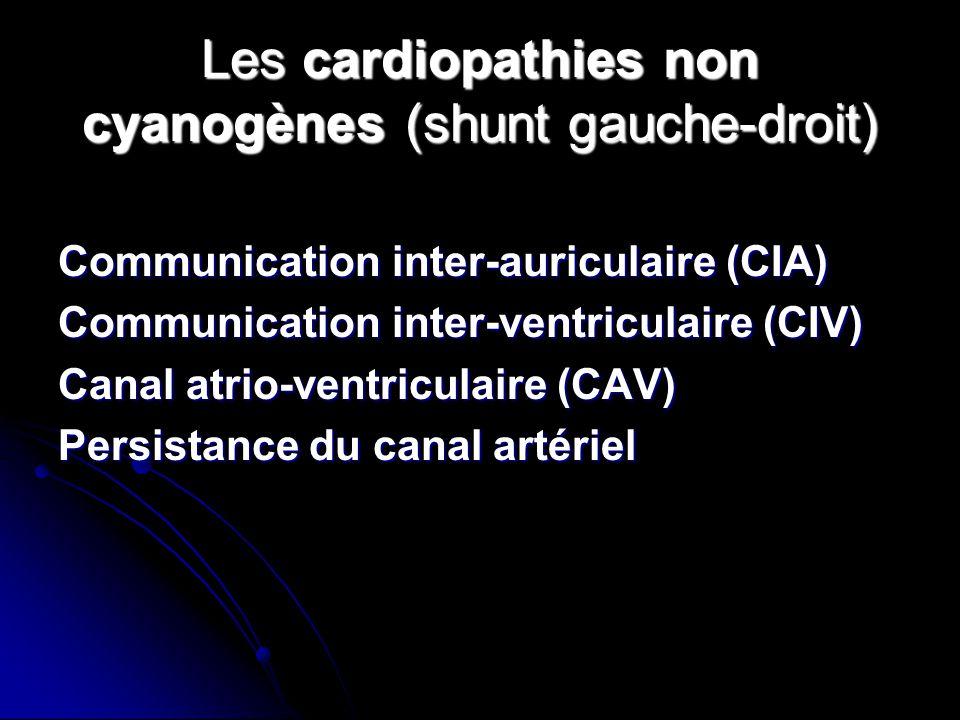 Les cardiopathies non cyanogènes (shunt gauche-droit) Communication inter-auriculaire (CIA) Communication inter-ventriculaire (CIV) Canal atrio-ventri