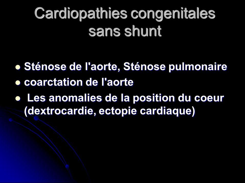 Cardiopathies congenitales sans shunt Sténose de l'aorte, Sténose pulmonaire Sténose de l'aorte, Sténose pulmonaire coarctation de l'aorte coarctation