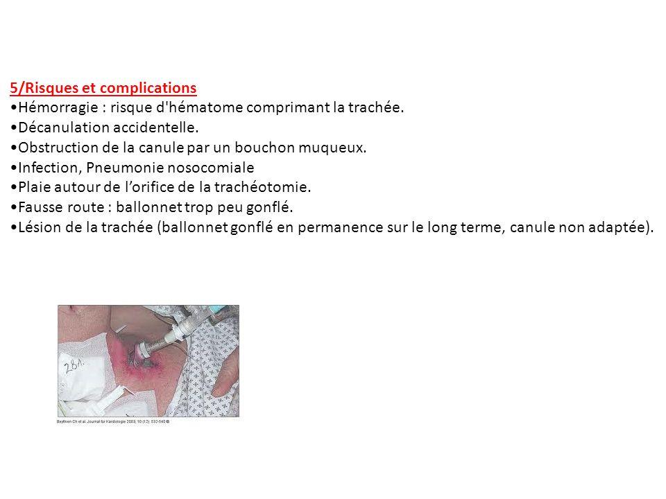 5/Risques et complications Hémorragie : risque d'hématome comprimant la trachée. Décanulation accidentelle. Obstruction de la canule par un bouchon mu