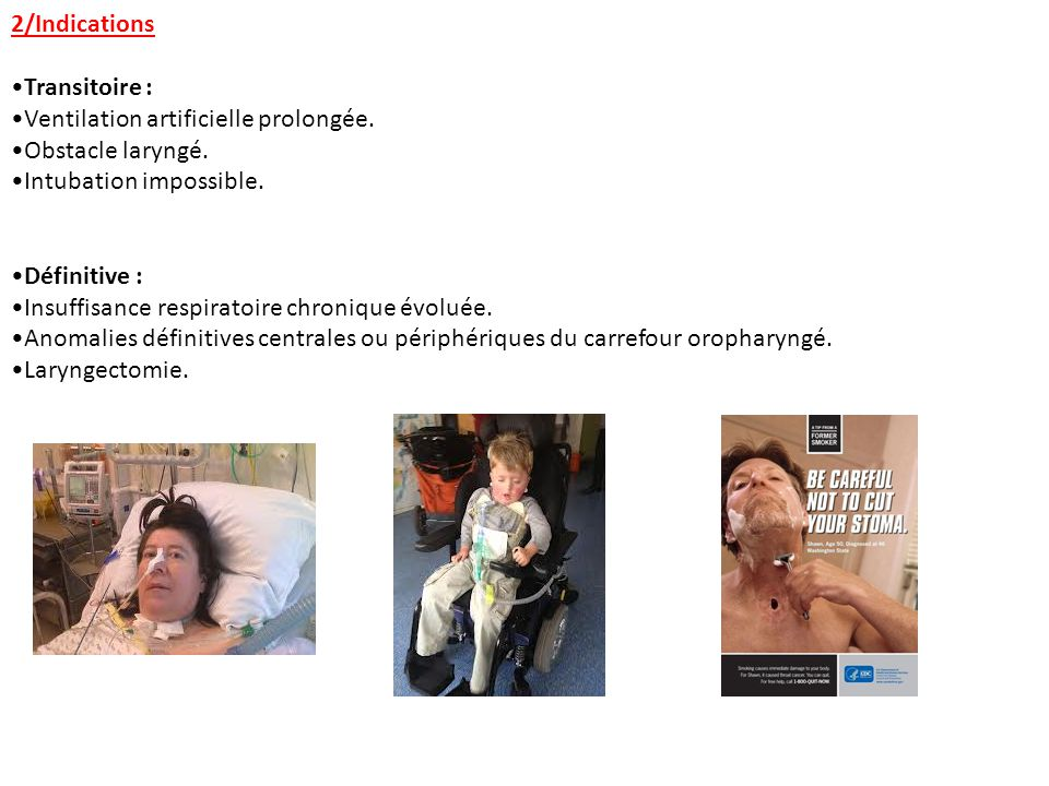 2/Indications Transitoire : Ventilation artificielle prolongée. Obstacle laryngé. Intubation impossible. Définitive : Insuffisance respiratoire chroni