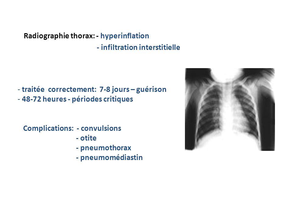 Radiographie thorax: - hyperinflation - infiltration interstitielle Evoluţie: - traitée correctement: 7-8 jours – guérison - 48-72 heures - périodes critiques Complications: - convulsions - otite - pneumothorax - pneumomédiastin