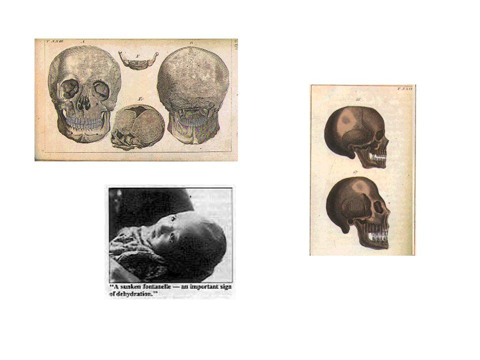 la fontanelle antérieure (bregmatique, grande fontanelle) forme de losange, 3 à 4 centimètres de large, elle est située entre les os frontaux et pariétaux sur le sommet du crâne, elle se ferme entre 6 et 18 mois.