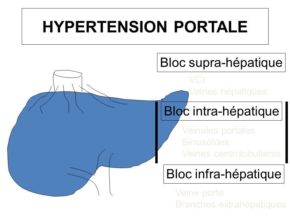 HYPERTENSION PORTALE Bloc intra-hépatique VCI Veines hépatiques Bloc supra-hépatique Bloc infra-hépatique Veine porte Branches extrahépatiques Veinule