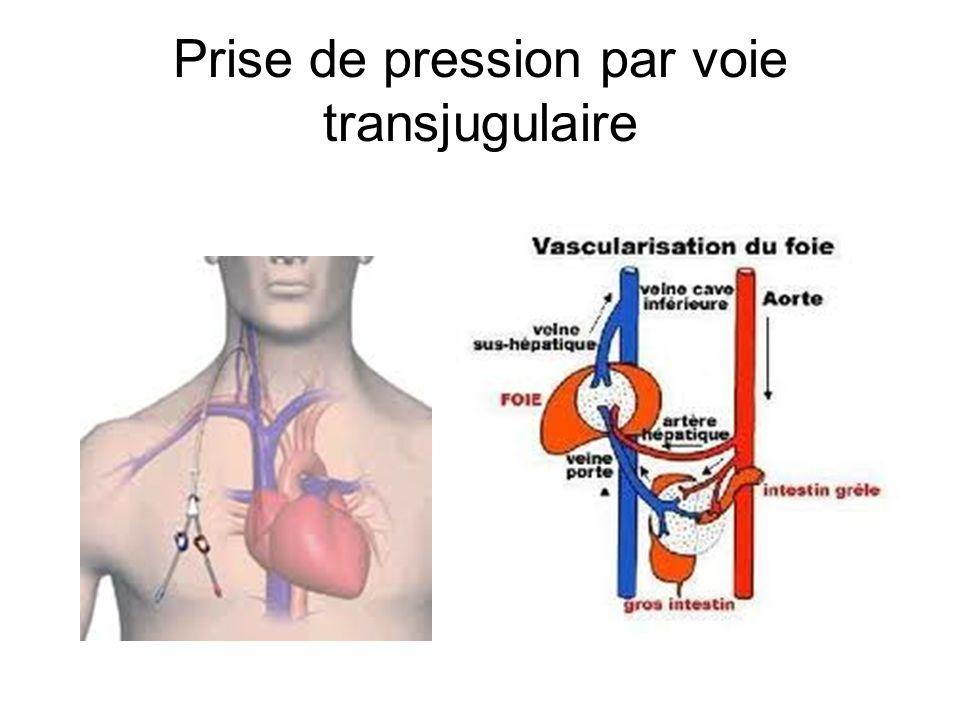 Prise de pression par voie transjugulaire
