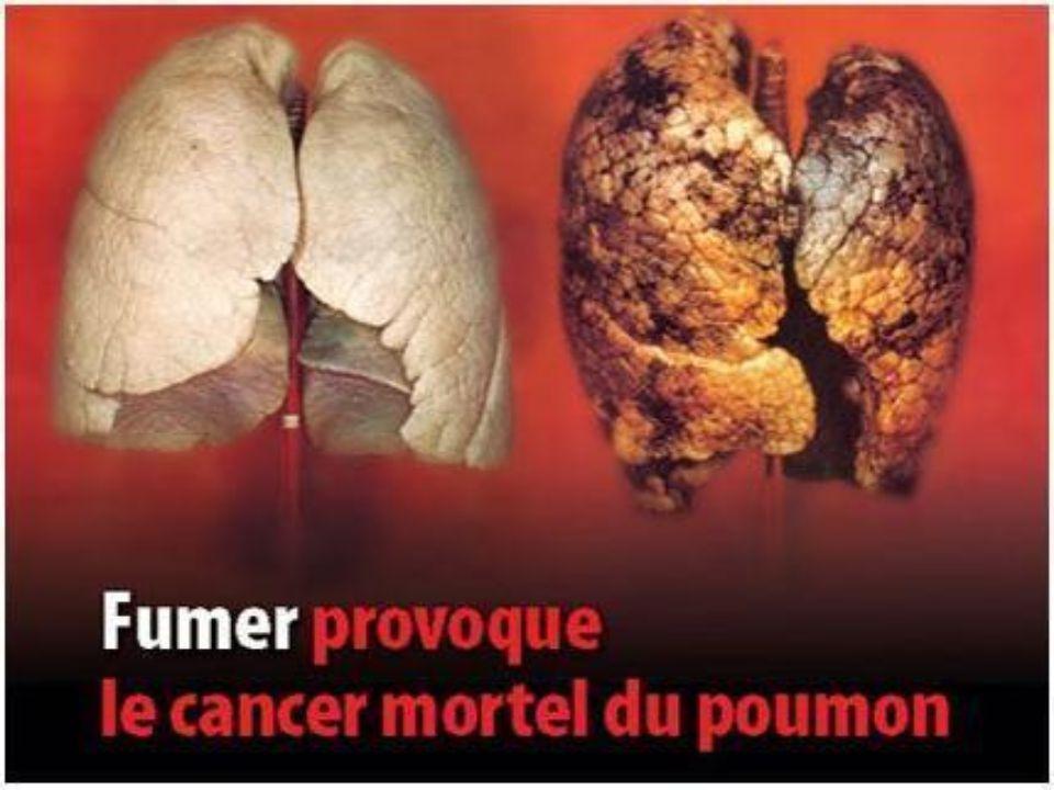 3.Le saviez-vous . Le tabac a un effet antimigraineux.