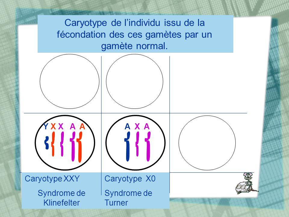 Caryotype de lindividu issu de la fécondation des ces gamètes par un gamète normal. Caryotype XXY Syndrome de Klinefelter Caryotype X0 Syndrome de Tur