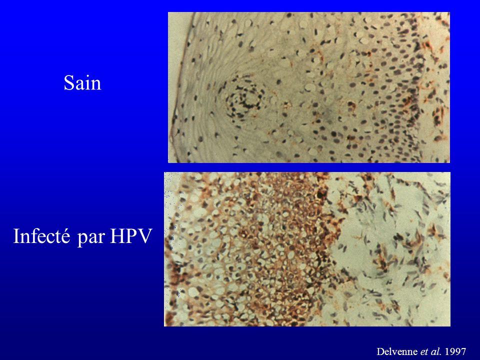 Delvenne et al. 1997 Sain Infecté par HPV