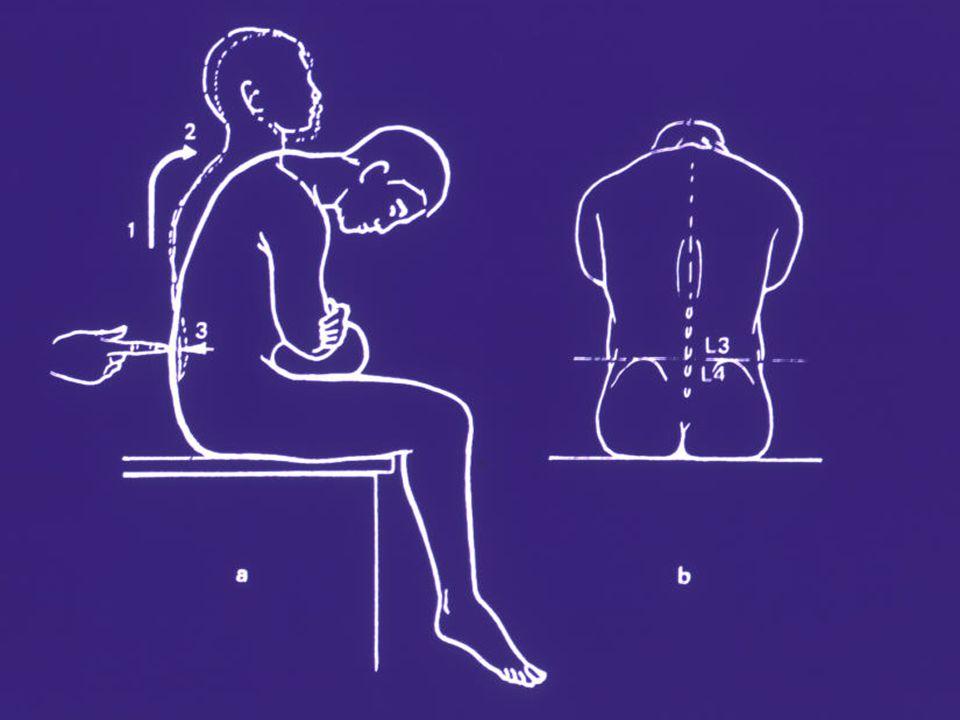 Infections à méningocoque Trois tableaux cliniques –Méningite –Méningite avec méningococcémie –Méningococcémie sans évidence clinique de méningite