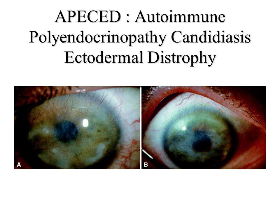 APECED : Autoimmune Polyendocrinopathy Candidiasis Ectodermal Distrophy