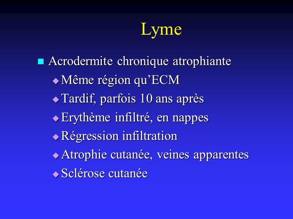 Lyme Acrodermite chronique atrophiante Acrodermite chronique atrophiante Même région quECM Même région quECM Tardif, parfois 10 ans après Tardif, parf