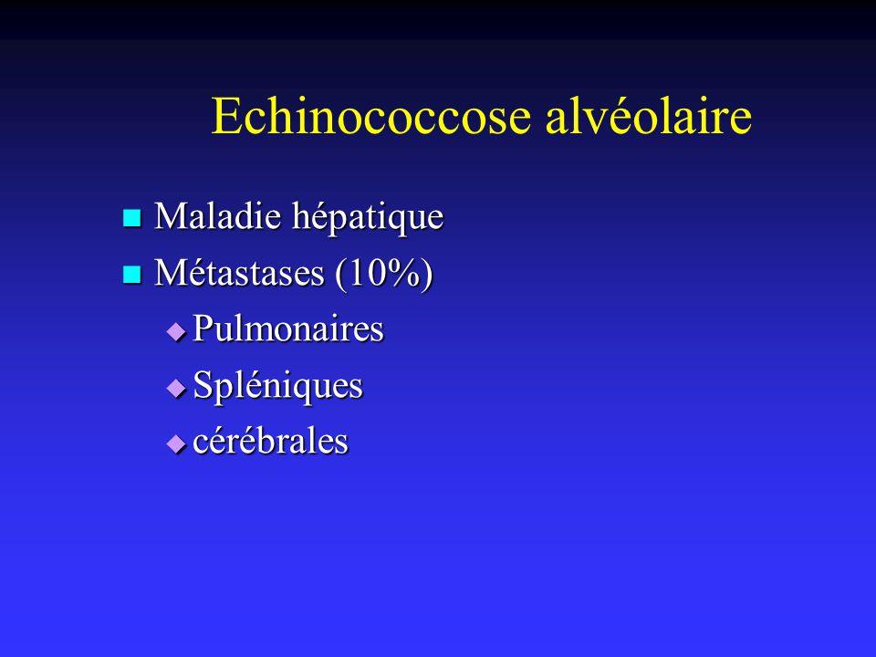 Echinococcose alvéolaire Maladie hépatique Maladie hépatique Métastases (10%) Métastases (10%) Pulmonaires Pulmonaires Spléniques Spléniques cérébrale