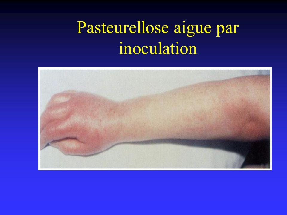 Pasteurellose aigue par inoculation