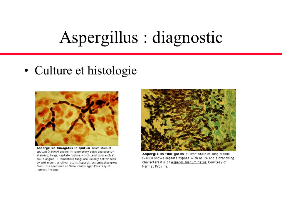 Aspergillus : diagnostic Culture et histologie