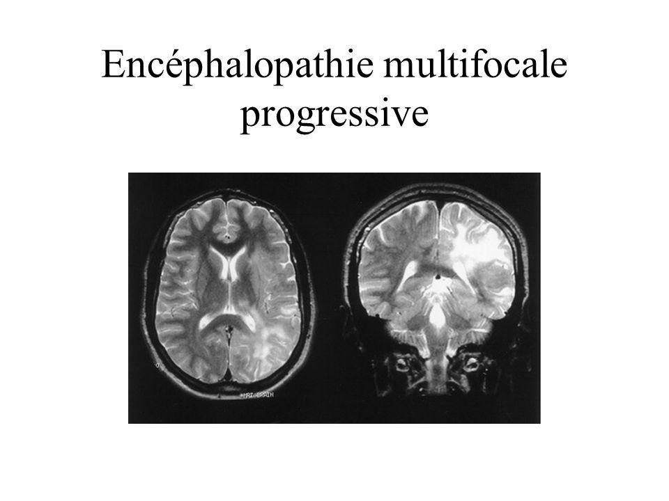 Encéphalopathie multifocale progressive