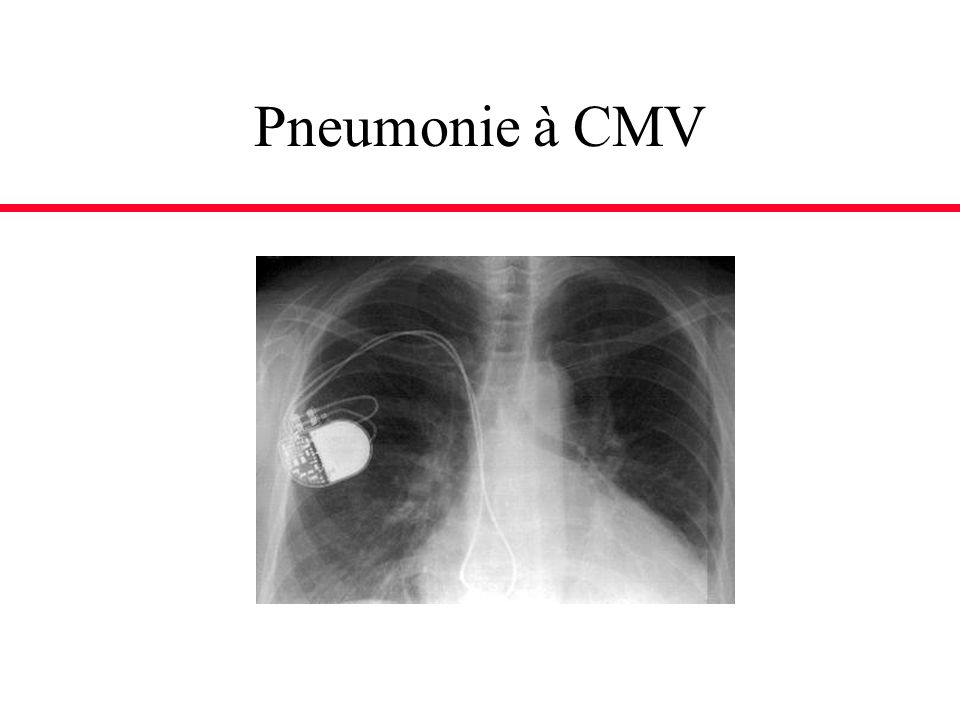 Pneumonie à CMV