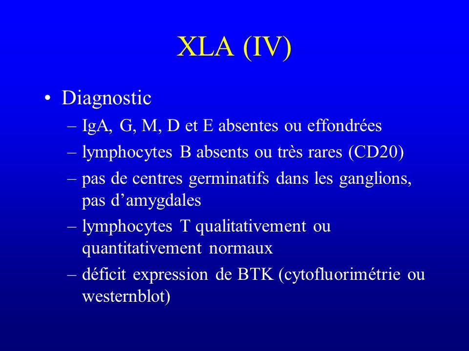 XLA (III) Complications tardives –Bronchectasies –Méningoencéphalite chronique (echovirus et coxsackies) –Arthrites à Ureaplasma urealyticum
