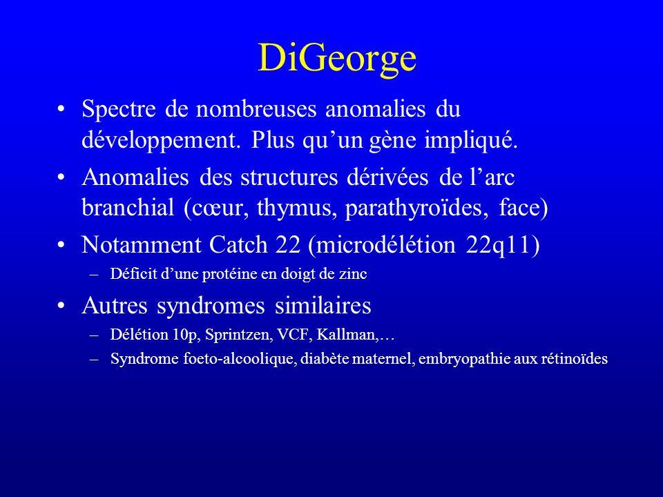 DiGeorge (Wiskott-Aldrich) (Ataxie-télangiectasie)