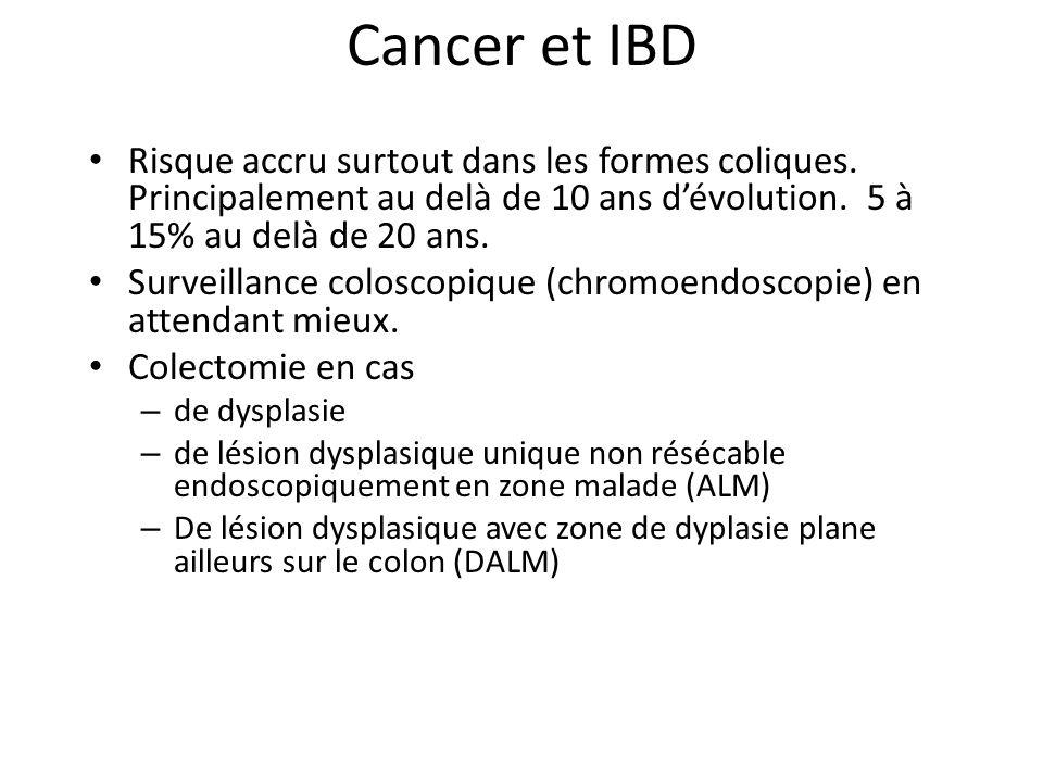 Cancer et IBD Risque accru surtout dans les formes coliques.