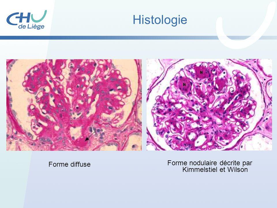 Histologie Forme nodulaire décrite par Kimmelstiel et Wilson Forme diffuse