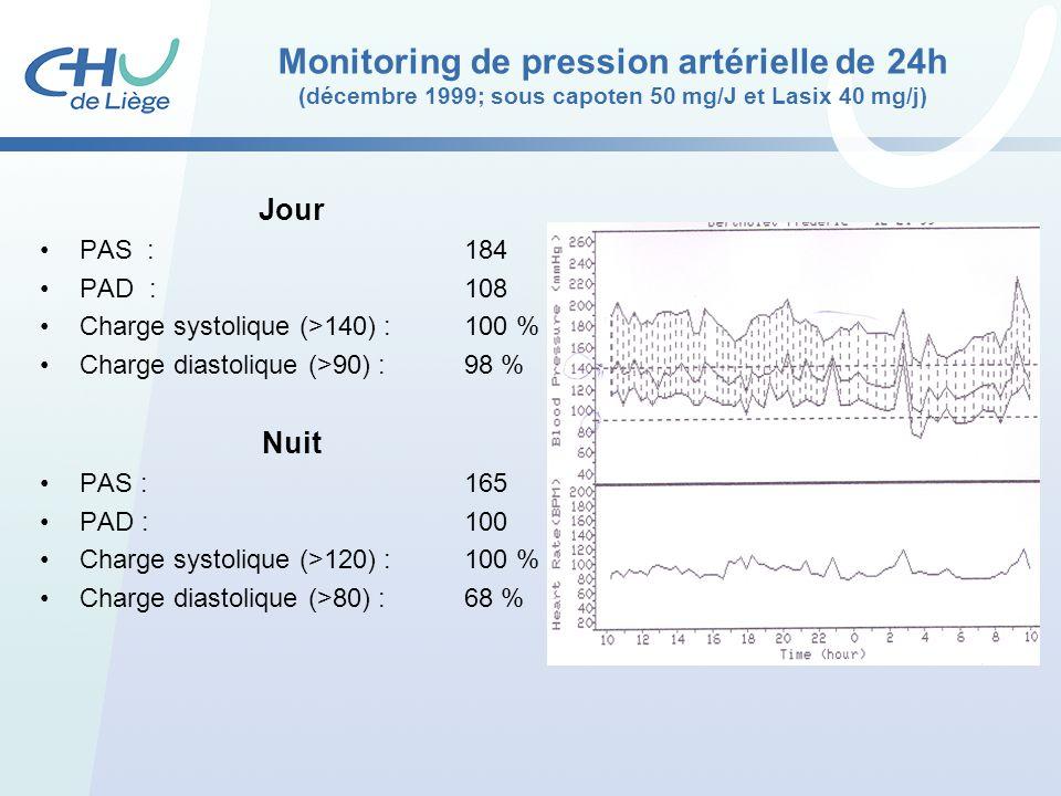 Monitoring de pression artérielle de 24h (décembre 1999; sous capoten 50 mg/J et Lasix 40 mg/j) Jour PAS :184 PAD :108 Charge systolique (>140) : 100