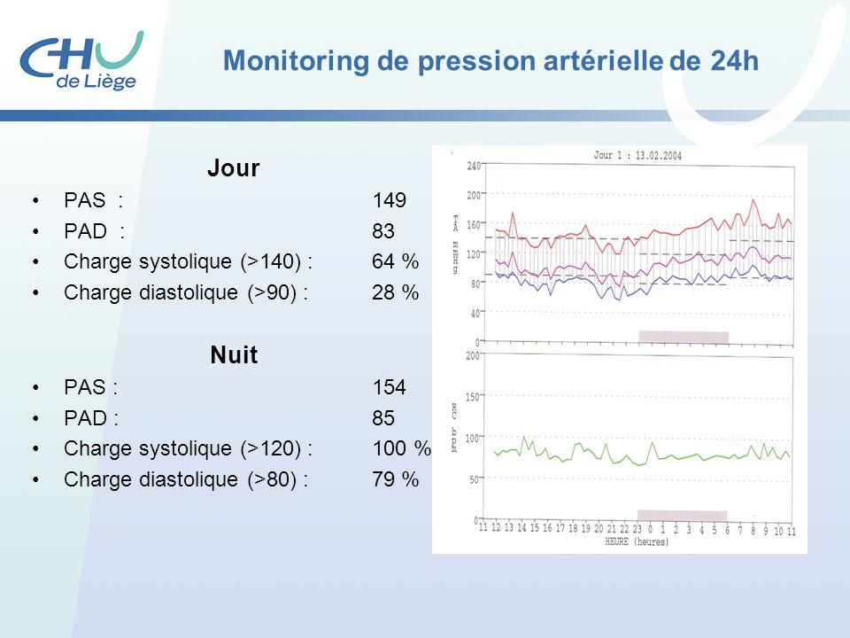 Monitoring de pression artérielle de 24h Jour PAS :149 PAD :83 Charge systolique (>140) : 64 % Charge diastolique (>90) : 28 % Nuit PAS :154 PAD :85 C