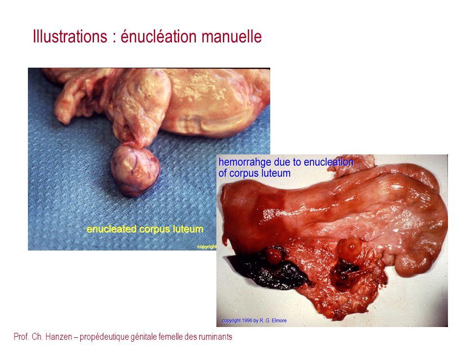 Prof. Ch. Hanzen – propédeutique génitale femelle des ruminants Illustrations : énucléation manuelle