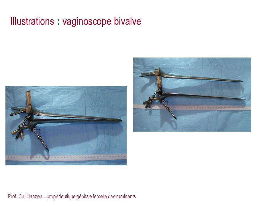 Prof. Ch. Hanzen – propédeutique génitale femelle des ruminants Illustrations : vaginoscope bivalve