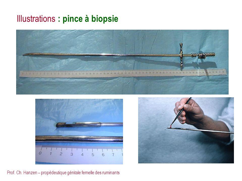 Prof. Ch. Hanzen – propédeutique génitale femelle des ruminants Illustrations : pince à biopsie
