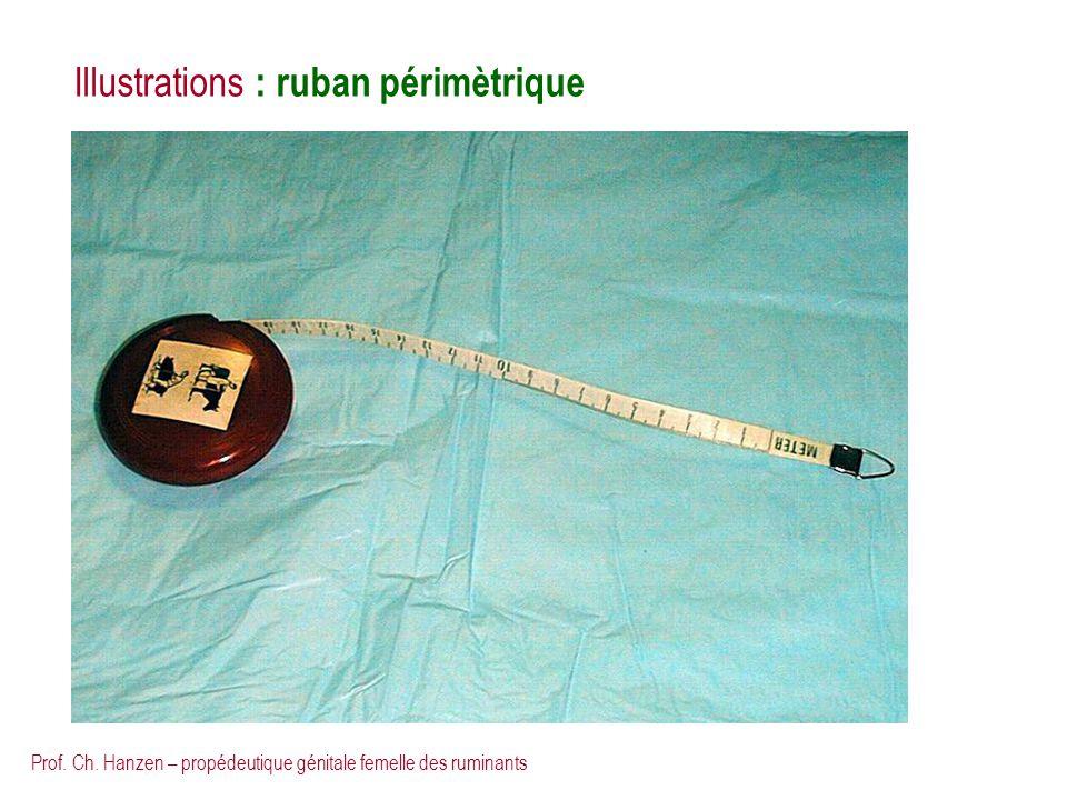 Prof. Ch. Hanzen – propédeutique génitale femelle des ruminants Illustrations : ruban périmètrique