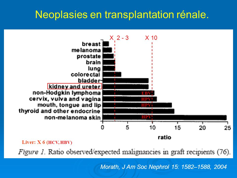 Risk of skin cancer in sirolimus-treated renal transplant recipients in whom ciclosporin is withdrawn compared with those who continue ciclosporin treatment Gutiérrez-Dalmau Á, Campistol J M Nephrol.
