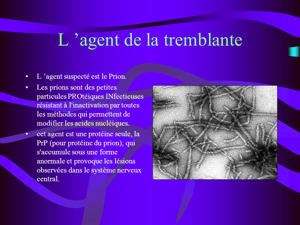 http://www.infectio- lille.com/diaporamas/GB/Prions.PDFhttp://www.infectio- lille.com/diaporamas/GB/Prions.PDF http://www.recherche.gouv.fr http://www.inserm.fr/ http://www.inra.fr/presse/COMMUNIQUE S/esst00/txt6.htmhttp://www.inra.fr/presse/COMMUNIQUE S/esst00/txt6.htm http://www.erudit.org