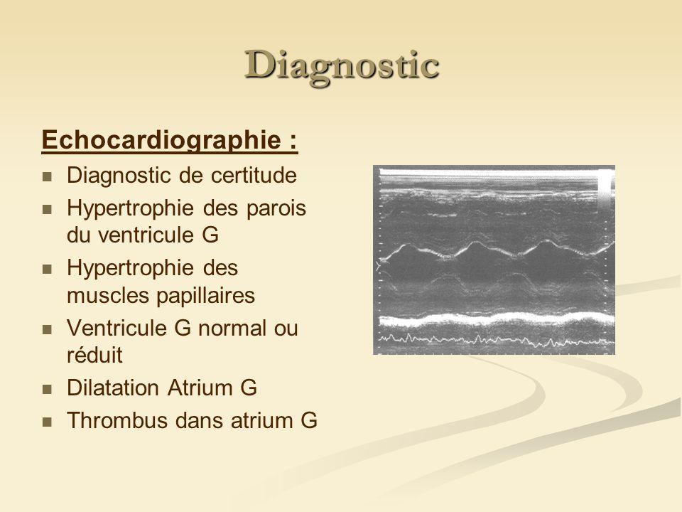Diagnostic Echocardiographie : Diagnostic de certitude Hypertrophie des parois du ventricule G Hypertrophie des muscles papillaires Ventricule G normal ou réduit Dilatation Atrium G Thrombus dans atrium G
