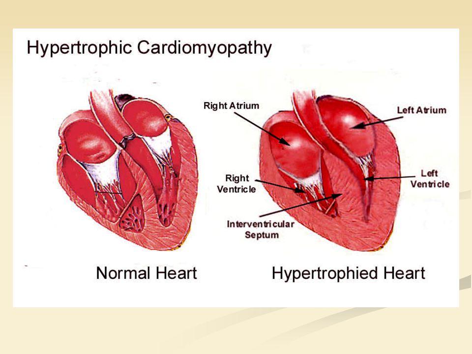 Les différents stades de la CMH Dysfonctionnement diastolique Ischémie myocardique Arythmies extra-ventriculaires puis ventriculaires Obstruction dynamique du ventricule G Régurgitation mitrale Progression irrégulière de la fibrose Stade terminal de défaillance myocardique
