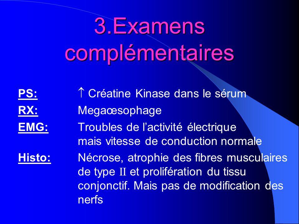 3.Examens complémentaires PS: Créatine Kinase dans le sérum RX:Megaœsophage EMG:Troubles de lactivité électrique mais vitesse de conduction normale Hi