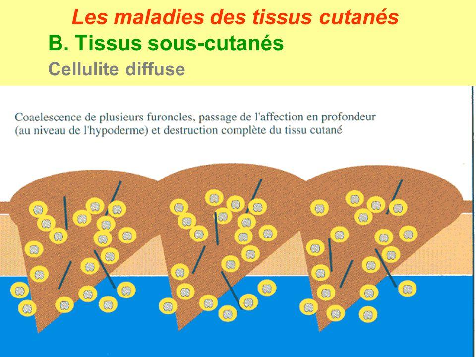 B. Tissus sous-cutanés Cellulite diffuse