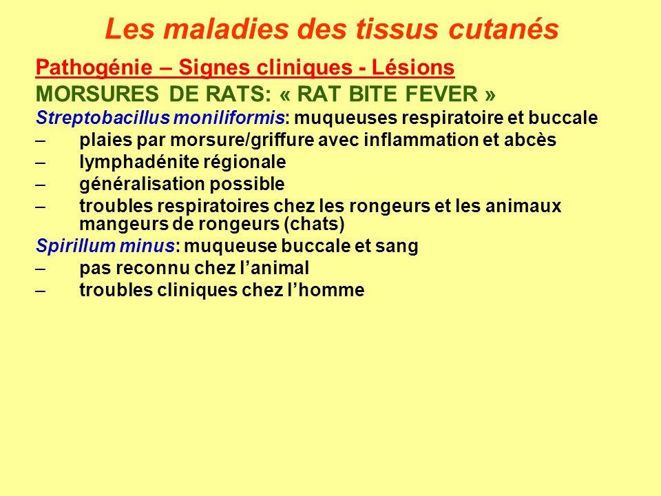 Les maladies des tissus cutanés Pathogénie – Signes cliniques - Lésions MORSURES DE RATS: « RAT BITE FEVER » Streptobacillus moniliformis: muqueuses r