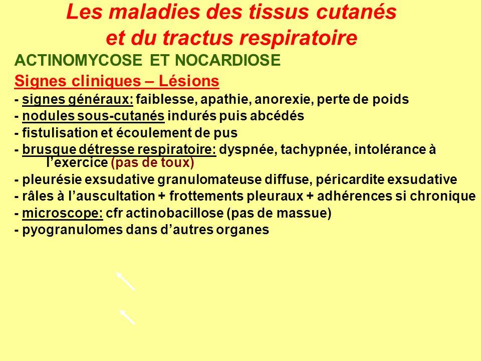 Les maladies des tissus cutanés et du tractus respiratoire ACTINOMYCOSE ET NOCARDIOSE Signes cliniques – Lésions - signes généraux: faiblesse, apathie