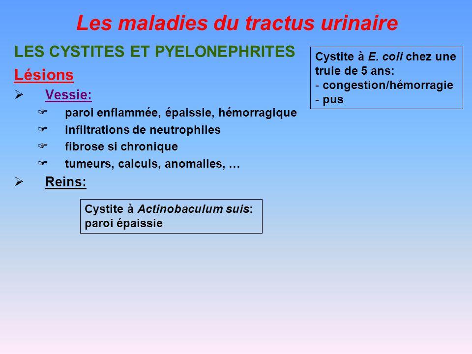 Les maladies du tractus urinaire LES CYSTITES ET PYELONEPHRITES Lésions Vessie: paroi enflammée, épaissie, hémorragique infiltrations de neutrophiles fibrose si chronique tumeurs, calculs, anomalies, … Reins: Cystite à E.