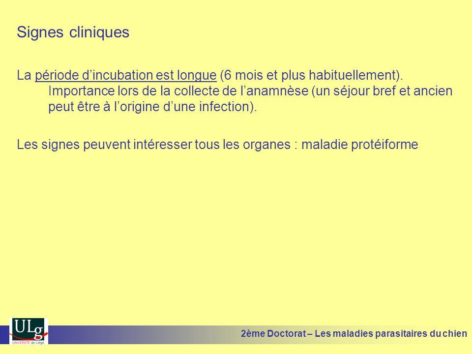 Signes cliniques La période dincubation est longue (6 mois et plus habituellement). Importance lors de la collecte de lanamnèse (un séjour bref et anc