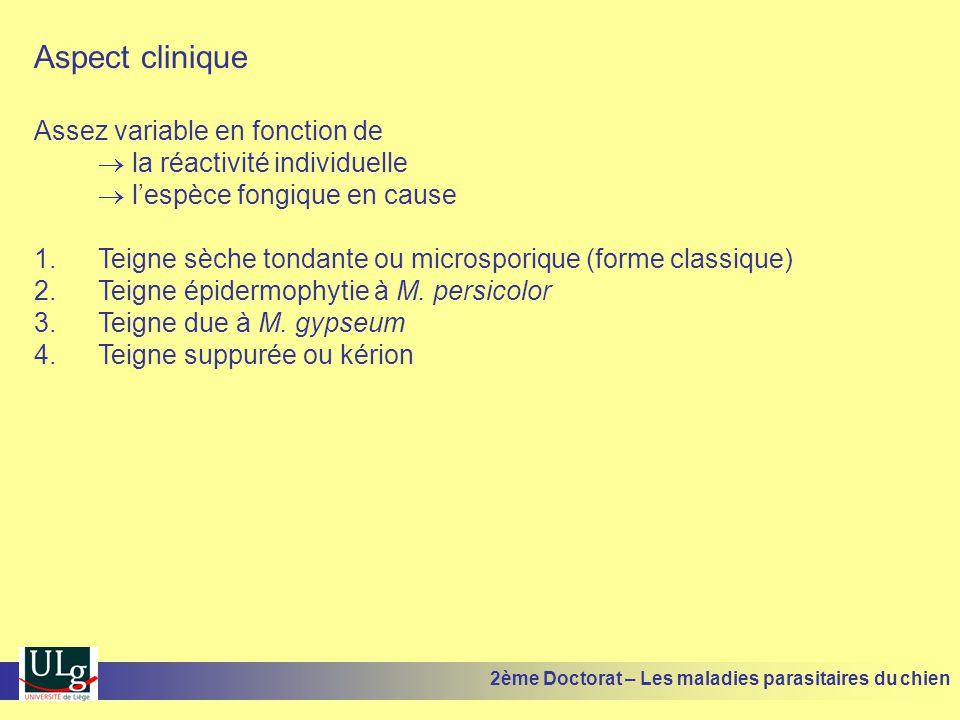 Aspect clinique Assez variable en fonction de la réactivité individuelle lespèce fongique en cause 1.Teigne sèche tondante ou microsporique (forme cla