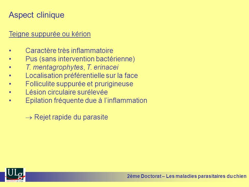 Aspect clinique Teigne suppurée ou kérion Caractère très inflammatoire Pus (sans intervention bactérienne) T. mentagrophytes, T. erinacei Localisation