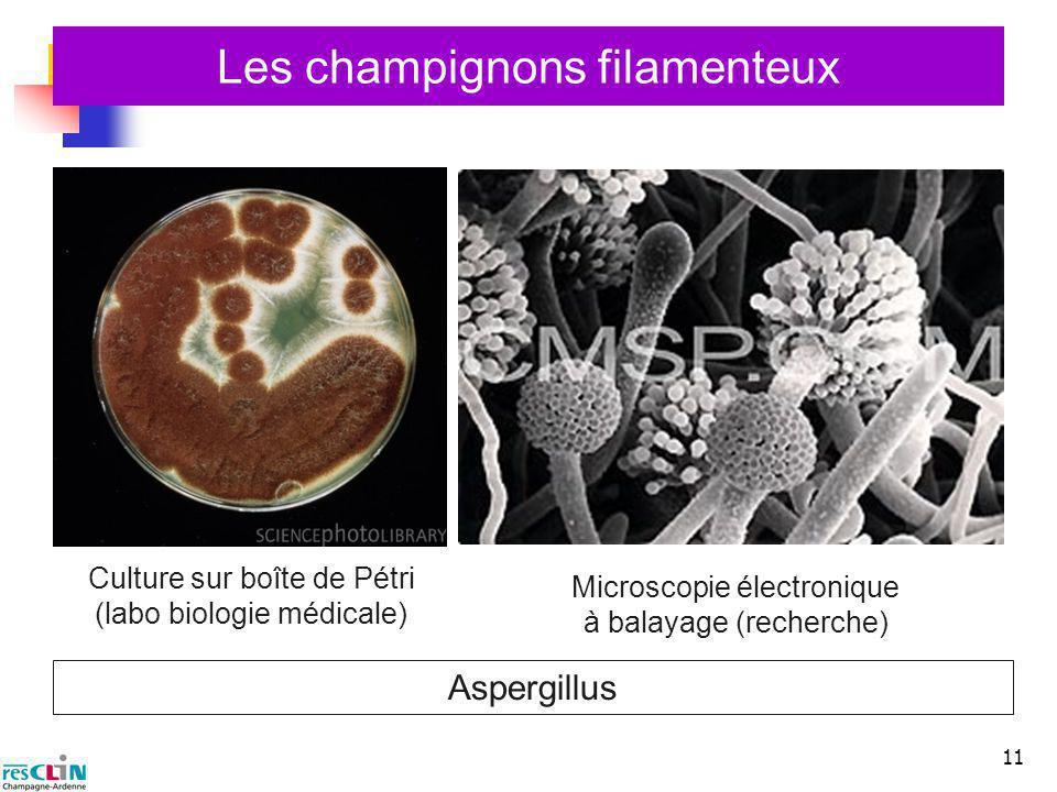 11 Les champignons filamenteux Microscopie électronique à balayage (recherche) Aspergillus Culture sur boîte de Pétri (labo biologie médicale)