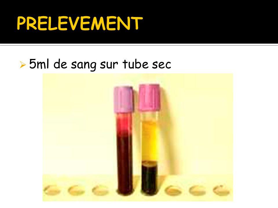 5ml de sang sur tube sec