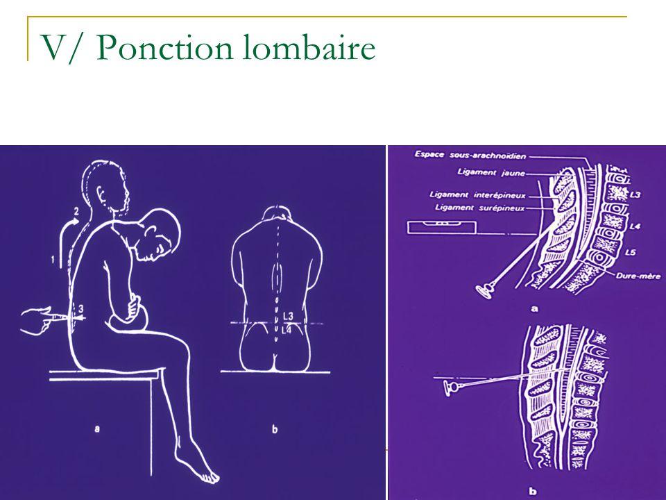 V/ Ponction lombaire